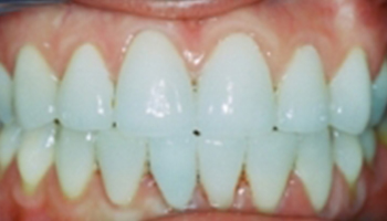 Oakridge Smiles - Before and After